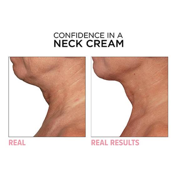 Confidence in a Neck Cream Moisturizer
