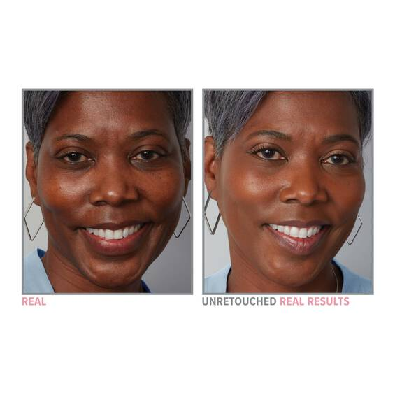 Your Skin But Better Foundation Skincare before and after 60 Deep Warm