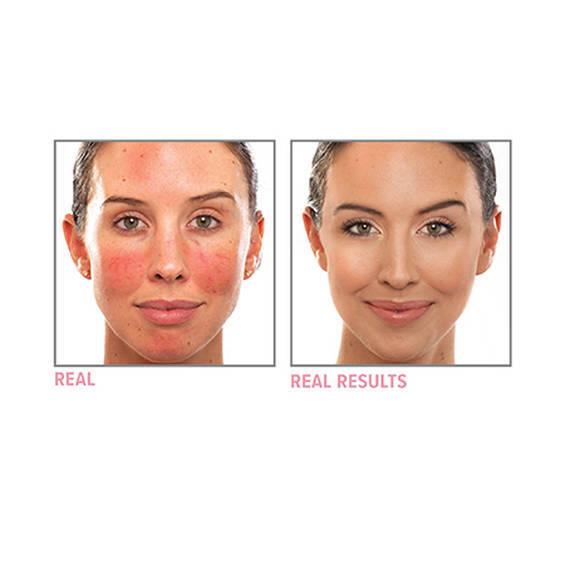 Neutralizing Correcting Cream For Face